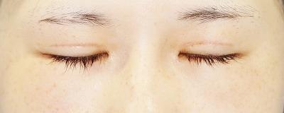 「眼瞼下垂(挙筋腱膜前転法)+全切開二重術」 新宿ラクル美容外科クリニック 山本厚志 10代女性 手術後1ヶ月目