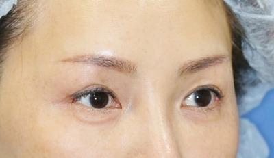 新宿ラクル美容外科クリニック 山本厚志 眉下切開法+目尻切開 手術後2ヶ月目
