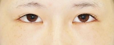「眼瞼下垂(挙筋腱膜前転法)+全切開二重術」 新宿ラクル美容外科クリニック 山本厚志 10代女性 手術前