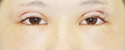 「眼瞼下垂(挙筋腱膜前転法)+全切開二重術」 新宿ラクル美容外科クリニック 山本厚志 10代女性 手術直後