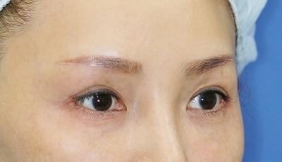 新宿ラクル美容外科クリニック 山本厚志 眉下切開法+目尻切開 手術後1ヶ月目