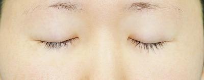 新宿ラクル美容外科クリニック 山本厚志 埋没法二重術(エクセレントアイ) 手術前