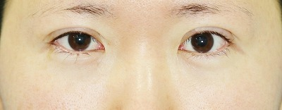 新宿ラクル美容外科クリニック 山本厚志 埋没法二重術(エクセレントアイ) 手術直後