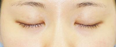 新宿ラクル美容外科クリニック 山本厚志 埋没法二重術(エクセレントアイ)+目尻切開+下眼瞼下制術 手術後1週間目