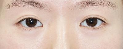 新宿ラクル美容外科クリニック 山本厚志 目尻切開+下眼瞼下制術 手術前