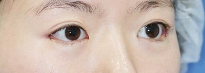 新宿ラクル美容外科クリニック 山本厚志 目尻切開+下眼瞼下制術 手術直後