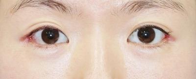 新宿ラクル美容外科クリニック 山本厚志 目尻切開+下眼瞼下制術 手術後1週間目