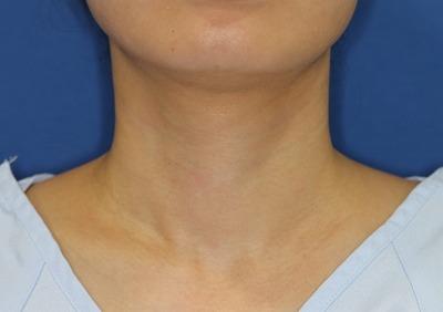 新宿ラクル美容外科クリニック 山本厚志 「ジュビダーム・ビスタ・ボリフト+ウルトラセルQプラス(首上部)」治療後2週間目