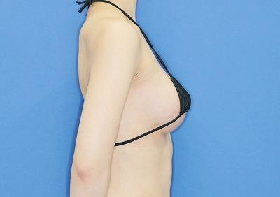 新宿ラクル美容外科クリニック 山本厚志 「Motiva(モティバ)エルゴノミクス」 手術後2ヶ月目