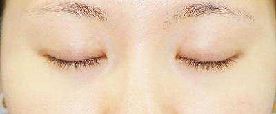 新宿ラクル美容外科クリニック 山本厚志 埋没法二重術(エクセレントアイ)+目尻切開+下眼瞼下制術 手術後3ヶ月目