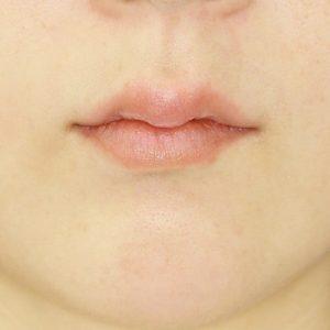 新宿ラクル美容外科クリニック 山本厚志 「ジュビダーム・ビスタ・ボリフト(上下口唇)」治療前