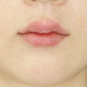 新宿ラクル美容外科クリニック 山本厚志 「ジュビダーム・ビスタ・ボリフト(上下口唇)」治療直後