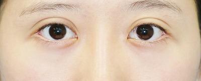 新宿ラクル美容外科クリニック 山本厚志 「全切開法二重術」 手術後6ヶ月目