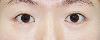 新宿ラクル美容外科クリニック 山本厚志 目尻切開+下眼瞼下制術 手術後1ヶ月目