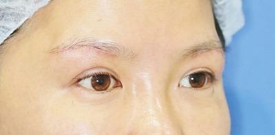 新宿ラクル美容外科クリニック 山本厚志 眉下切開法 手術後2週間目