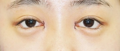 新宿ラクル美容外科クリニック 山本厚志 「目頭切開+下眼瞼下制術」 手術直後