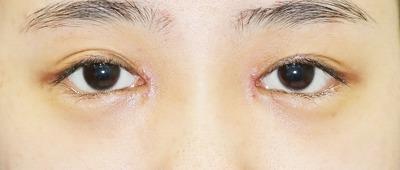 新宿ラクル美容外科クリニック 山本厚志 「目頭切開+下眼瞼下制術」 手術後1週間目