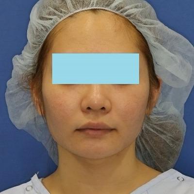 新宿ラクル美容外科クリニック 山本厚志 「ミントリフトⅡminiS flex(シークレットリフト)」 手術後1週間目 4月7日