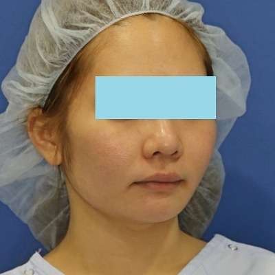 新宿ラクル美容外科クリニック 山本厚志 「ミントリフトⅡminiS flex(シークレットリフト)」 手術後1週間目
