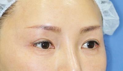 新宿ラクル美容外科クリニック 山本厚志 眉下切開法+目尻切開 手術後3ヶ月目