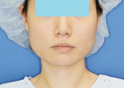 新宿ラクル美容外科クリニック ボトックス(ゼオミン)(エラボトックス) 20代女性 治療前