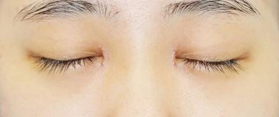 新宿ラクル美容外科クリニック 山本厚志 「目頭切開+下眼瞼下制術」 手術後1ヶ月目
