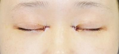 新宿ラクル美容外科クリニック 山本厚志 「蒙古ひだ形成術(目頭切開修正)」 手術直後