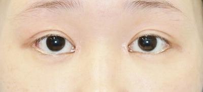 新宿ラクル美容外科クリニック 山本厚志 「蒙古ひだ形成術(目頭切開修正)」 手術後2ヶ月目