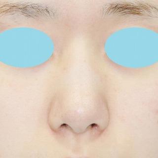 新宿ラクル美容外科クリニック 山本厚志 鼻尖軟骨形成(maeda法)+小鼻縮小 手術後1ヶ月目