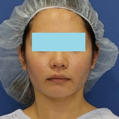 新宿ラクル美容外科クリニック 山本厚志 「ミントリフトⅡminiS flex(シークレットリフト)」 手術直後 4月7日