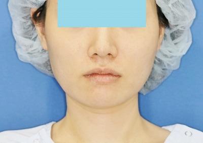 新宿ラクル美容外科クリニック ボトックス(ゼオミン)(エラボトックス) 20代女性 治療後2ヶ月目