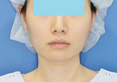 新宿ラクル美容外科クリニック ボトックス(ゼオミン)(エラボトックス) 20代女性 治療後3ヶ月目