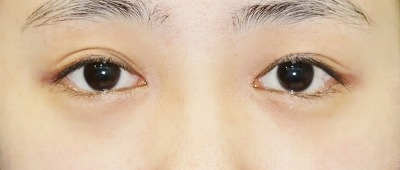 新宿ラクル美容外科クリニック 山本厚志 「目頭切開+下眼瞼下制術」 手術後2ヶ月目