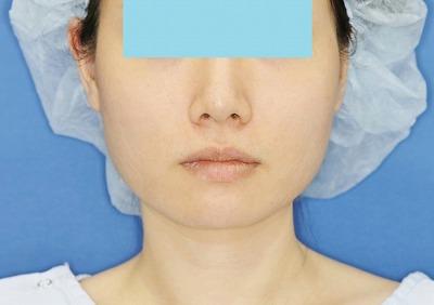 新宿ラクル美容外科クリニック ボトックス(ゼオミン)(エラボトックス) 20代女性 治療後1ヶ月目