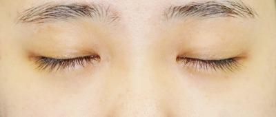 新宿ラクル美容外科クリニック 山本厚志 「目頭切開+下眼瞼下制術」 手術前