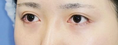 新宿ラクル美容外科クリニック 山本厚志 「目頭切開+目尻切開」 手術後2ケ月目