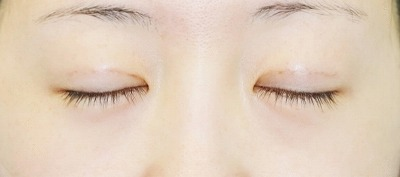 新宿ラクル美容外科クリニック 山本厚志 埋没法二重術(エクセレントアイ) 手術後3日目
