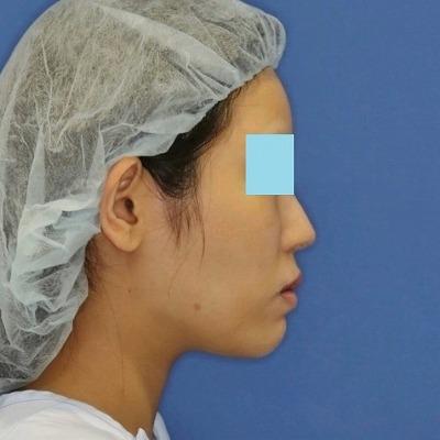 新宿ラクル美容外科クリニック 山本厚志 「ミントリフトⅡminiS flex(シークレットリフト)」 手術後3ヶ月目