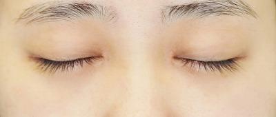 新宿ラクル美容外科クリニック 山本厚志 「目頭切開+下眼瞼下制術」 手術後3ヶ月目