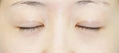 新宿ラクル美容外科クリニック 山本厚志 埋没法二重術(エクセレントアイ) 手術後1週間目