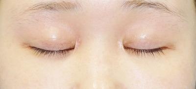 新宿ラクル美容外科クリニック 山本厚志 「蒙古ひだ形成術(目頭切開修正)」 手術後3ヶ月目