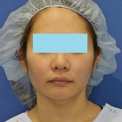 新宿ラクル美容外科クリニック 山本厚志 「ミントリフトⅡminiS flex(シークレットリフト)」 手術後1ヶ月目 4月7日