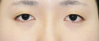 目元整形のビフォーアフター/20代女性、目頭切開+目尻切開 手術