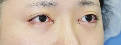 新宿ラクル美容外科クリニック 山本厚志 「目頭切開+目尻切開」 手術直後