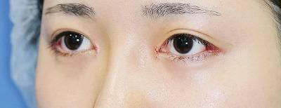 新宿ラクル美容外科クリニック 山本厚志 「目頭切開+目尻切開」 手術後1週間目