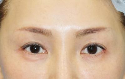 新宿ラクル美容外科クリニック 山本厚志 眉下切開法+目尻切開 手術後6ヶ月目