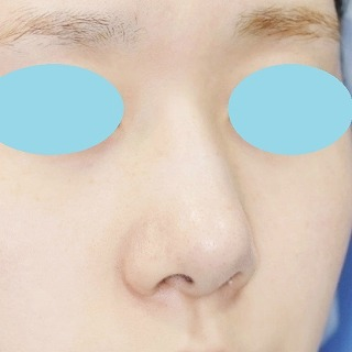 新宿ラクル美容外科クリニック 山本厚志 鼻尖軟骨形成(maeda法)+小鼻縮小 手術後2ヶ月目 5月24日