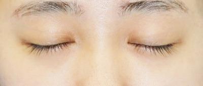 新宿ラクル美容外科クリニック 山本厚志 「目頭切開+下眼瞼下制術」 手術後6ヶ月目 5月10日
