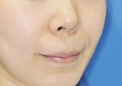 新宿ラクル美容外科クリニック 山本厚志 「人中短縮術(リップリフト)」 手術前