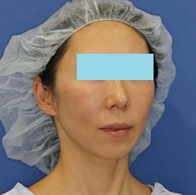 新宿ラクル美容外科クリニック 山本厚志 「ミントリフトⅡminiS flex(シークレットリフト)」 手術後1ヶ月目 3月31日